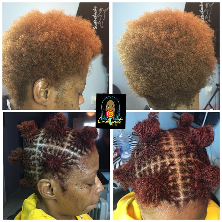 Color before Sisterlocks installation done by a licensed