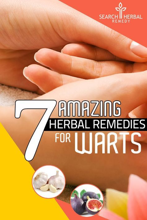 7 Amazing Herbal Remedies For Warts