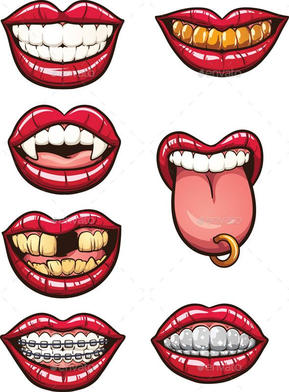 Cartoon Mouths (CS, braces, cartoon, character, fang, female, golden, gradient, illustration, isolated, lip, mouth, pierced, red, smile, teeth, tongue, Toothless, vampire, vector)