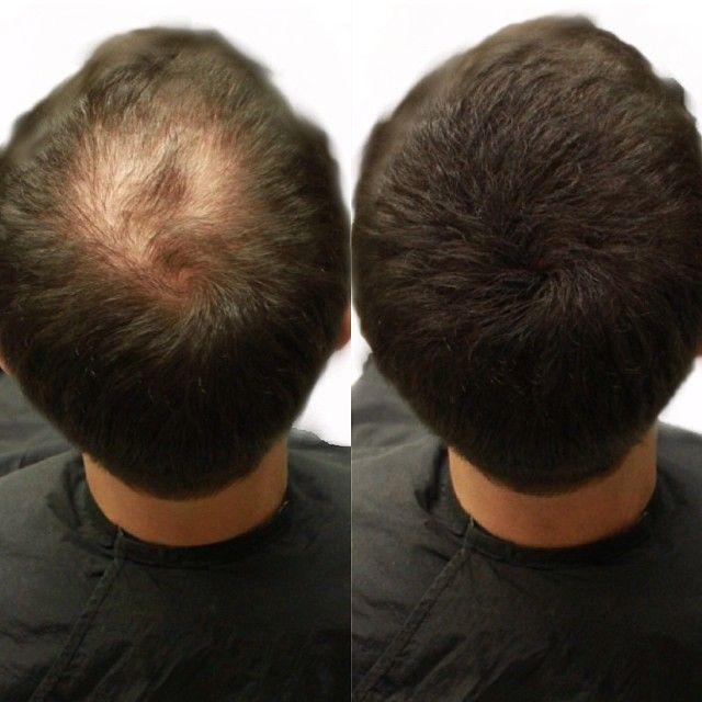 #Dölja #utväxt - Köp Viviere Volume Fibre 22 gram, Viviere Boosting Spray, Viviere Anti Hair Loss samt Viviere spegel för endast 599 kr (ord 711 kr) inkl. frakt.