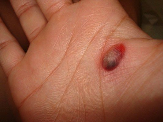 Ten Tips to Remove Blood Blisters Easily