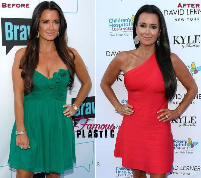 Kyle Richards can't help but post bikini selfies to her social media accounts to show off her plastic surgery sculpted body.