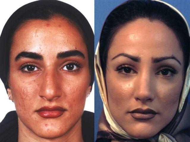 image Iran women hid camera