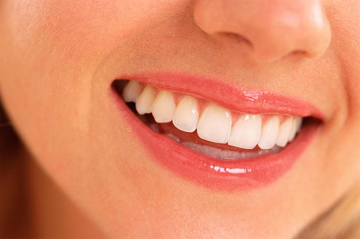 I Got Porcelain Veneers and Laser Gum Reshaping. And here's why it was the best damn beauty investment I've ever made.