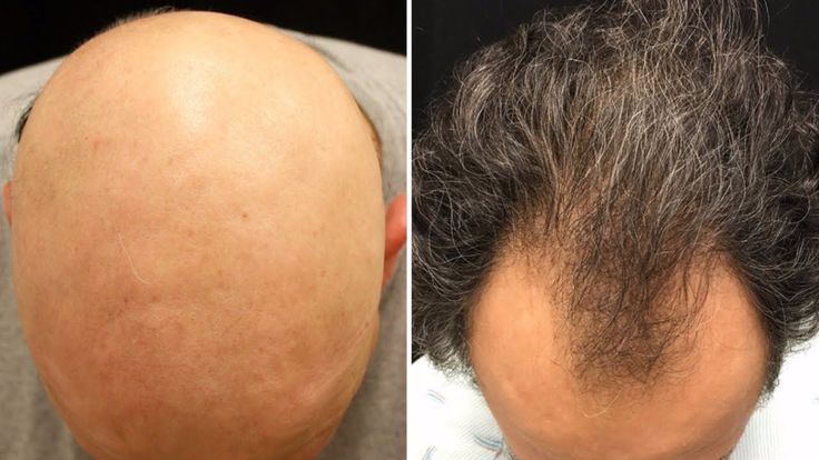 How To Use Castor Oil For Hair Growth - Hair Loss Remedy #hairlossremedyformen