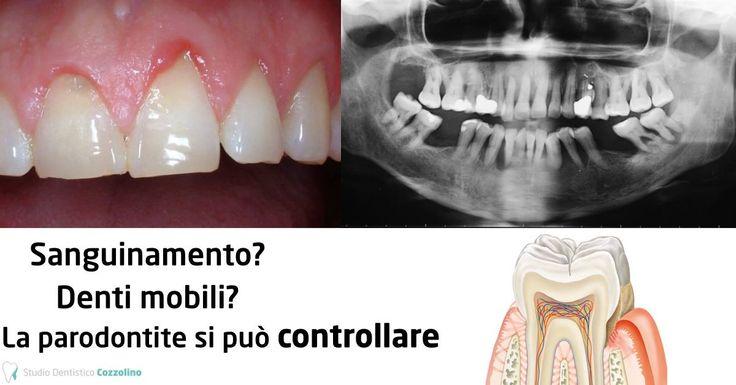LA PARODONTITE (Piorrea) oggi SI PUÒ CONTROLLARE! http://www.studiodentisticocozzolino.it/parodontologia/  La Parodontologia è quella branca dell'odontoiatria che si occupa della prevenzione, della diagnosi e della cura delle patologie a carico dei tessuti di sostegno del dente come gengive e osso.