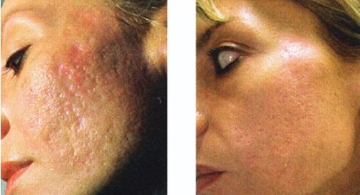 CIT (Collagen Induction Therapy) Treatment @ Cara Elyse Skincare ...
