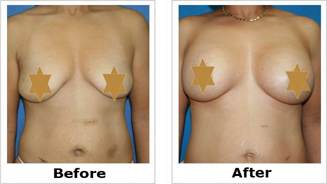 Implants facts about breast
