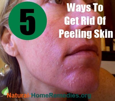 How To Get Rid Of Peeling Skin On Face