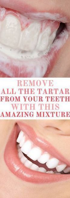 Try This Amazing Mixture And Remove All the Tartar From Your Teeth! – Toned