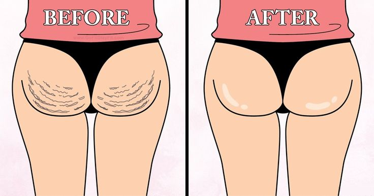Many women spend huge amounts of money on cellulite treatments that don't give the expected results. Here we are going to show you how to solve your problem with natural remedies. Hydration is essenti