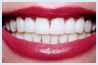 dental crown is actually a dental restoration which cups above that portion of the tooth which is situated over the gumline. The crowns are often accustomed to secure tooth along with strengthen them.