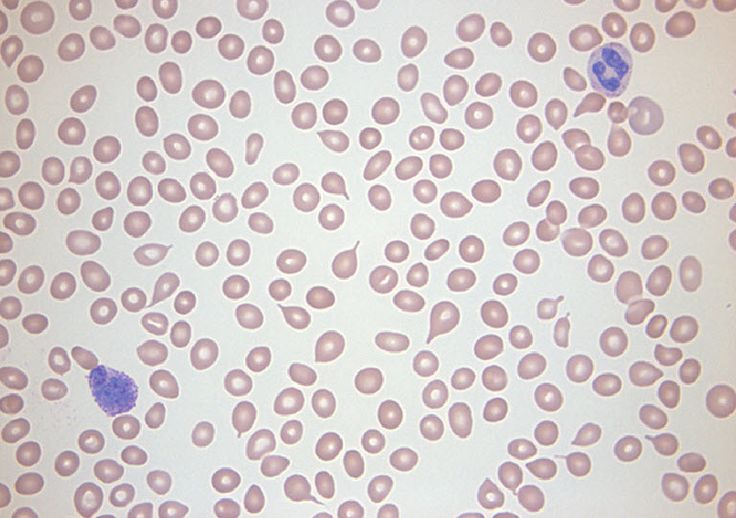 Article about Microcytic Hypochromic Anemia