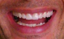 Lentes de contato dental.  Protesista e ceramista: Dr Josué Gomes