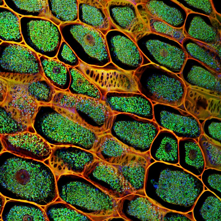 Confocal Microscopy Of Plant Tissue Photograph  - Confocal Microscopy Of Plant Tissue Fine Art Print