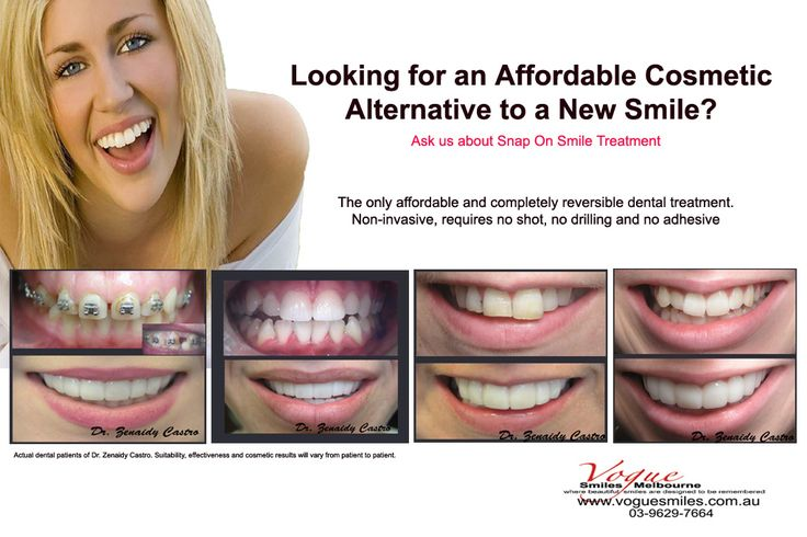 Vogue Smiles Melbourne is a cosmetic dentist and dental clinic in Melbourne providing a wide range of advanced general and cosmetic dentistry procedures such as Cosmetic Smile Makeover, Lumineer Veneer, Porcelain Veneer, tooth /dental crowns, teeth whitening service, tooth crowns, Invisalign, Emergency dental care
