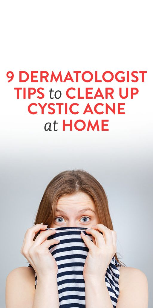 9 Dermatologist Tips to Clear Up Cystic Acne at Home