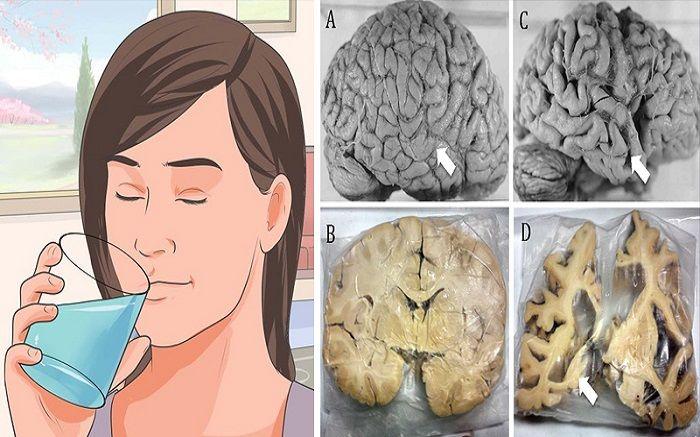 Αλουμίνιο: Τι προκαλεί στον εγκέφαλο & πως να το απομακρύνετε στην κυκλοφορία του αίματος μεταφέρεται στον εγκέφαλο και την καρδιά, οπού συσσωρεύεται στο ήδ