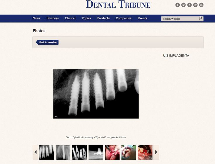 IMPLADENTA - universal implant system (UIS), view ONLINE   gallery Dental-Tribune   patients cases   One & two pieces implants   made in Czech Republic   2017   Screw implants & blade implants   Tradition over 30 years