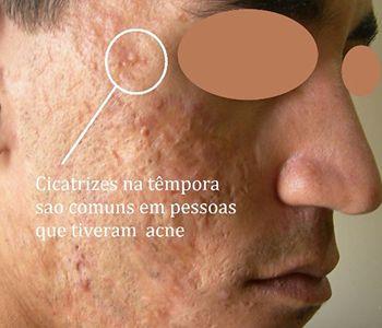 As cicatrizes de acne podem ser de vários tipos diferentes e para cada tipo e local da cicatriz podem ser usados tratamentos diferentes ou combinados. Consulte seu médico dermatologista para o tratamento mais adequado. #dermatologiaesaude #especializadoemdermatologia #cicatrizesdeacne #cicatrizesemface #tratamentodecicatrizes