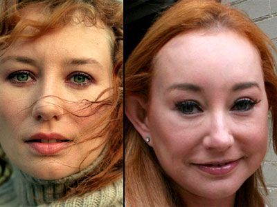Tori Amos Plastic Surgery Before and After Always interesting what you can find …