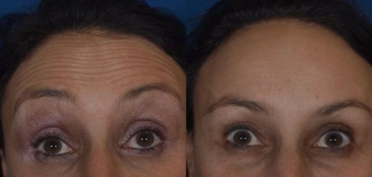Forehead lines are relaxed within 3-7 days of a Botox treatment, results lasting 3+ months. - - Forehead lines are relaxed within 3-7 days of a Botox treatment, results lasting 3+ months. Forehead lines are relaxed within 3-7 days of a Botox treatment, results lasting 3+ months. antiagingvancouve...