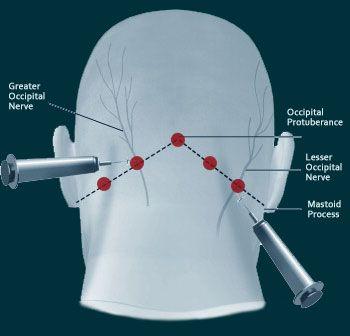 Nerve Pain (Greater Occipital Nerve Block)
