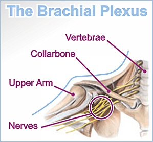 Nerves C5 through C8 and T1 can be damaged in an Erb's Palsy/Brachial Plexus Injury causing total or partial Paralysis in the hand, wrist, elbow,and shoulder.  for more information on this birth injury go to www.ubpn.org