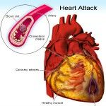 Caution: These seven signs are announcing a heart attack but most people ignore them Do not ignore these seven symptoms! Believe it or not, a heart attack will not come without warning. It will announce itself weeks and days before the actual impact...
