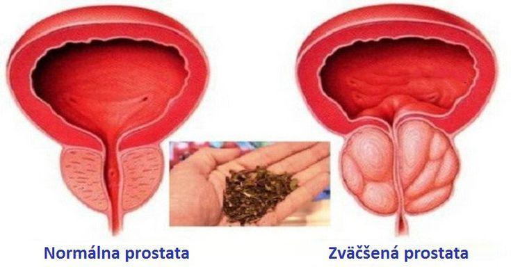 Takmer každý muž nad 45 rokov života má nejaké problémy s prostatou. Samozrejme, nemusí to byť hneď rakovina alebo iné vážne ochorenie.