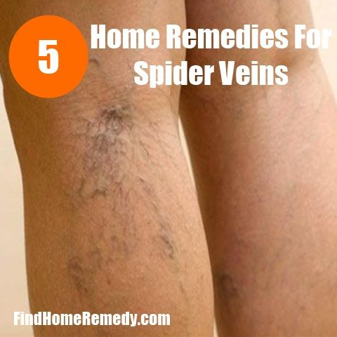 Apple cider vinegar is the most common home remedy for spider veins. Soak a clean cloth in apple cider vinegar and apply as a compress for 1/2 hour, repeat this twice a day until the veins regain their normal apperance