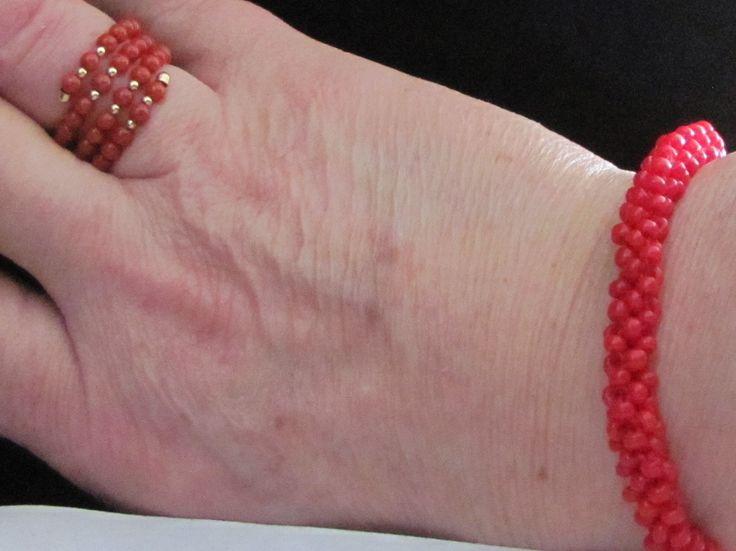 Stunning 18K coral ring and matching bracelet. See it at.. https://www.rubylane.com/shop/odditiesandantiquites