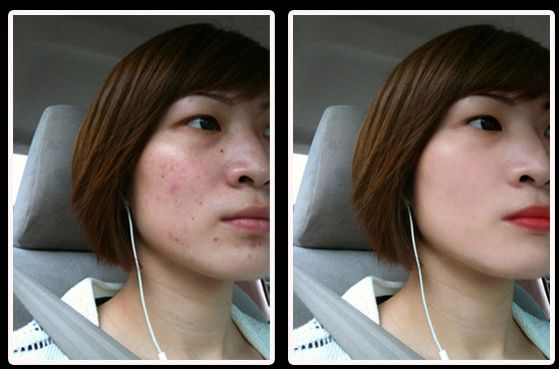 How to Remove Pimple Marks from the Face