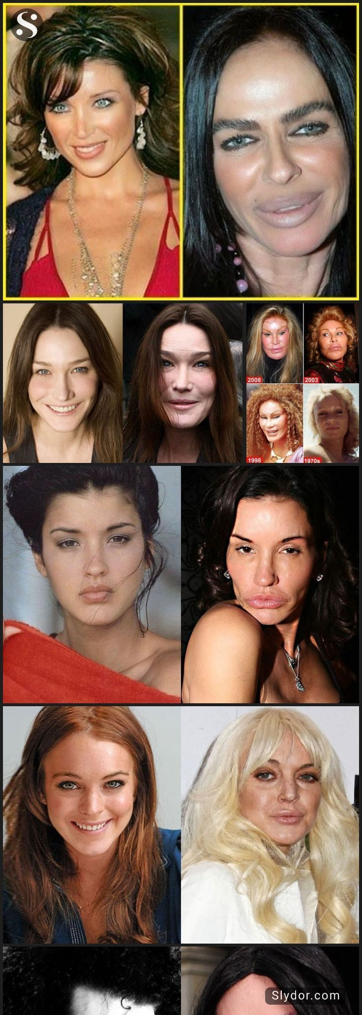 50 Unrecognizable Celebrity Plastic Surgeries - Page 15 of ...
