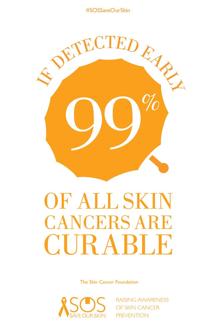 SKIN FACT: If detected early, 99% of all skin cancers are curable. RE-PIN THIS IMAGE TO HELP RAISE AWARENESS FOR SKIN CANCER PREVENTION. For every repin, we'll donate 1 DOLLAR to The Skin Cancer Foundation.#SOSSaveOurSkin