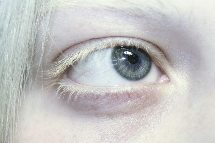 Я редко когда могу сказать ,что восхищаюсь своей внешностью...и тем не менее...я очень люблю свои белые ресницы, белые волосы бледную кожу...но ненавижу глаза.. Именно такими глазами...ГЛАЗАМИ АЛЬБИНОСА хотела бы я видеть этот мир. чистыми голубыми глазами..  white eyelashes albino blue eyes white hair anastasiz vinney skin art dream