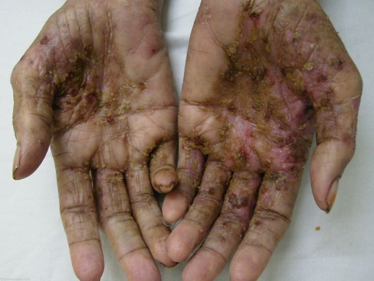 photo of scabies