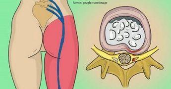 La inflamación del nervio ciático: este simple ejercicio eliminará el dolor..
