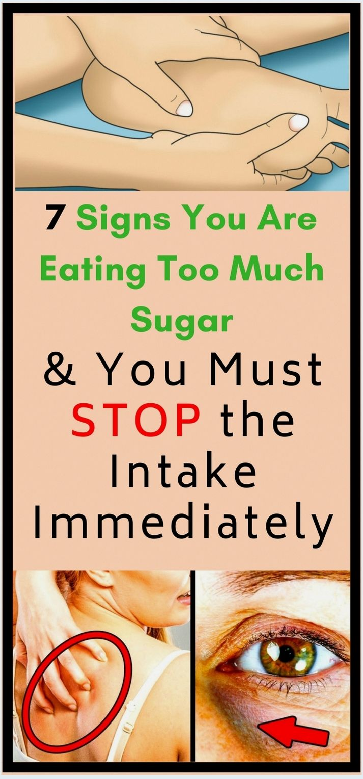 7 Signs You Are Eating Too Much Sugar Shape Your Body Mir