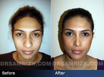 Before and after photo of a latino female in her early 20s who had an endonasal 3D rhinoplasty and nostril reduction.