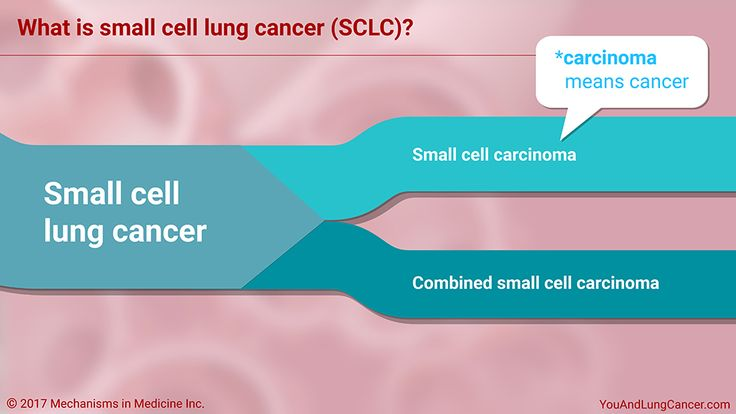 What is small cell lung cancer (SCLC)?    SCLC is one of two major types of lung cancer. The other one is non-small cell lung cancer (NSCLC). The 2 most common subtypes of SCLC are:      Small cell carcinoma (oat cell cancer)—carcinoma is another word for cancer    Combined small cell carcinoma  slide show: understanding small cell lung cancer. this slide show explains how healthy lungs function and how small cell lung cancer can occur. small cell lung cancer is one of two major types of…