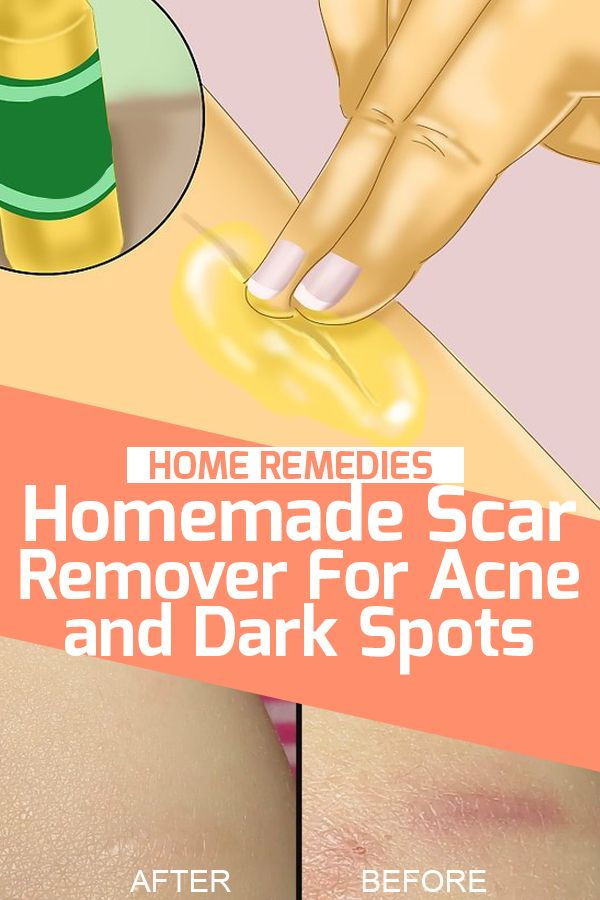 Homemade Scar Remover For Acne and Dark Spots #homeremedies