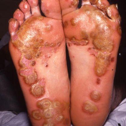 bottom of feet spondyloarthropathies