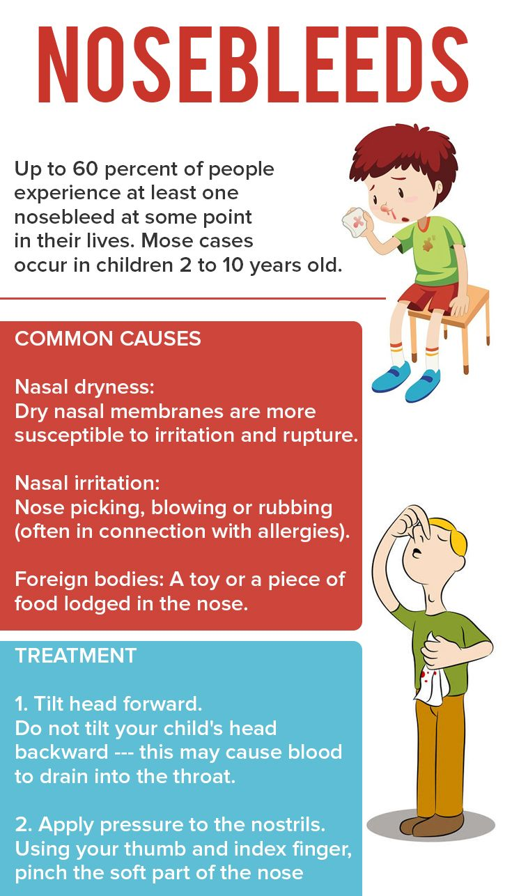 What Are The Causes Of Nosebleeds Healthykids Nosebleeds Commoncauses Https Suz Myshaklee Com Us En Shop Kids Nutrition Healthy Kids How To Stay Healthy