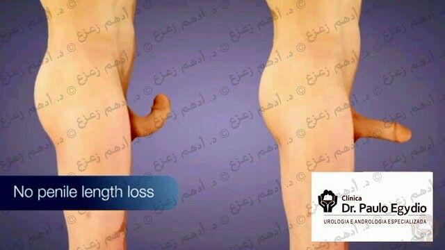 تقنيه إيجيديو لعلاج مرض البيروني جراحيا Thumbs Up