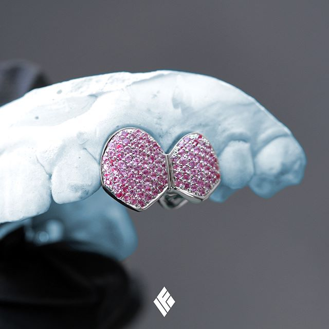 Solid 14K White Gold Double Cap Grill Set Fully Iced With Pink Sapphires. Custom made for @cggores  #Grillz #PinkSapphire #CustomJewelry #IFANDCO