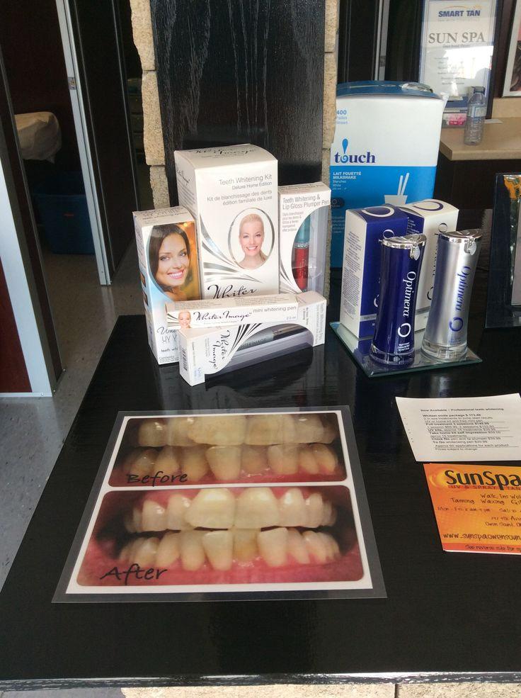 Professional teeth whitening service, get up to 6 shades whiter in 1 hour.