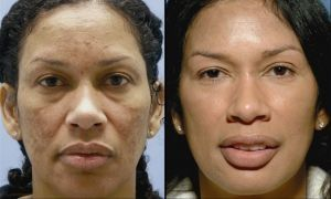 Face Manipulation Aerobics For A Finer, More Youthful Face
