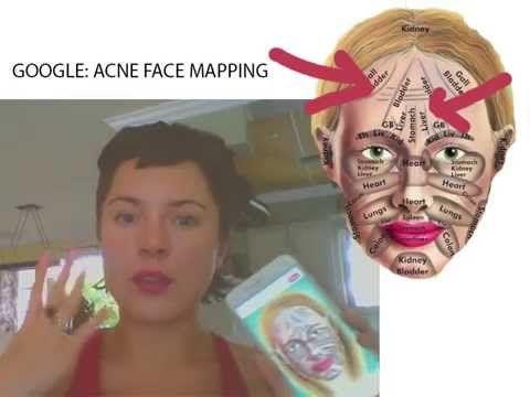 Puistjes Face Mapping: Kun je de Oorzaak van je Acne Vinden Op je Gezicht? - YouTube