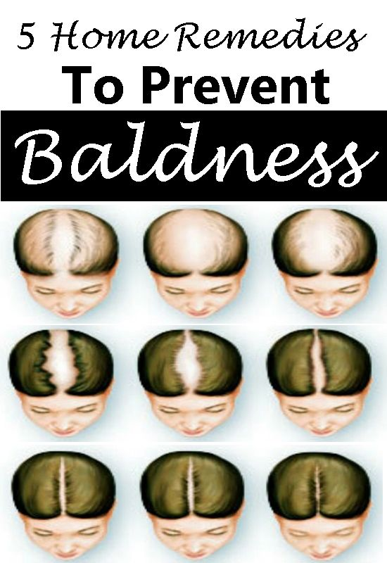 Top 5 Home Remedies To Prevent Baldness